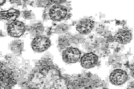 Image of spherical coronavirus particles from the first U.S. case of COVID-19