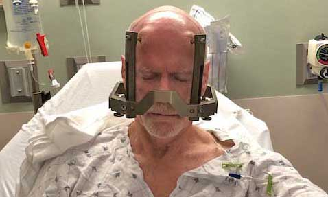"""Dr. Ragle sits with a metal """"frame"""" around his head to help surgeons map out the main incision"""